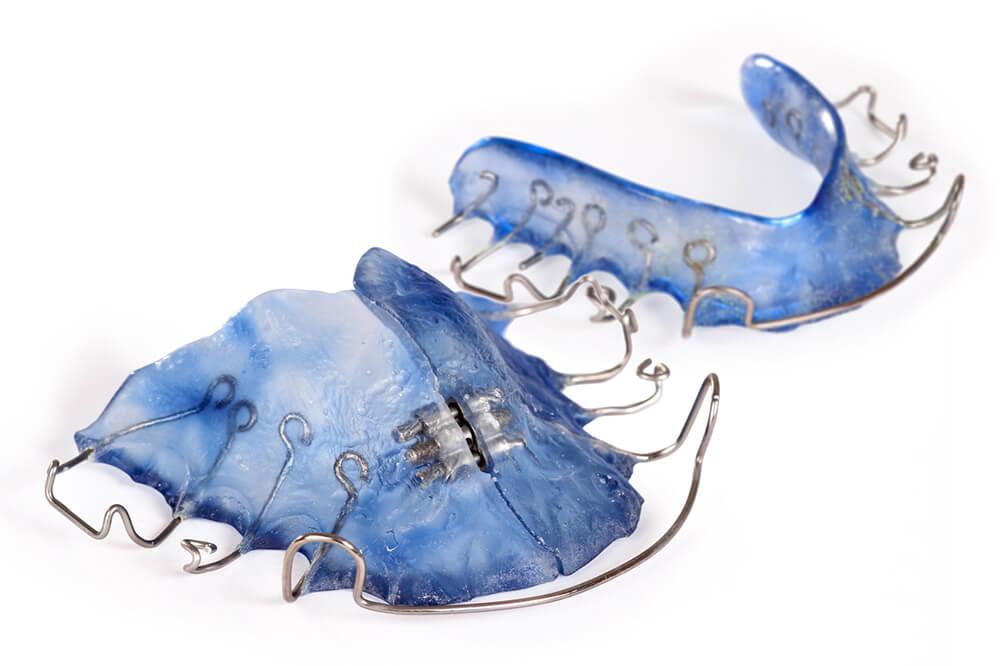 Blaue Dehnplatte ++ Zahnspange - die gibt es in Papenburg beim Zahnarzt