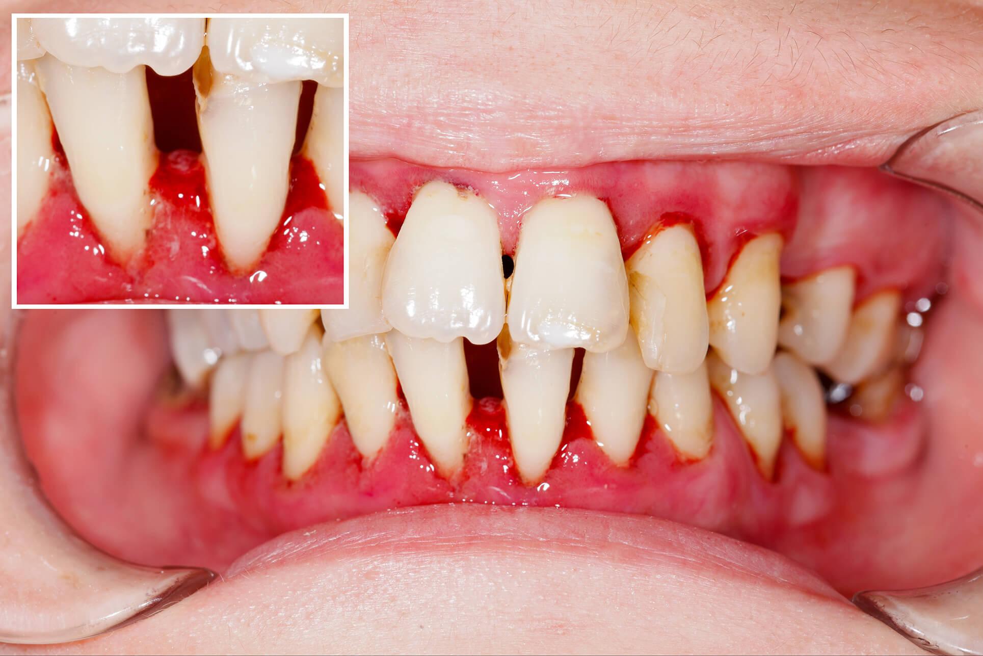 Nach der Zahnreinigung ++ Zahnarztpraxis Papenburg