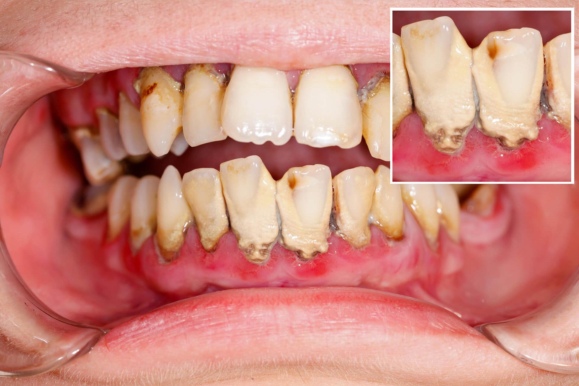 Vor der Zahnreinigung ++ Zahnarztpraxis Papenburg