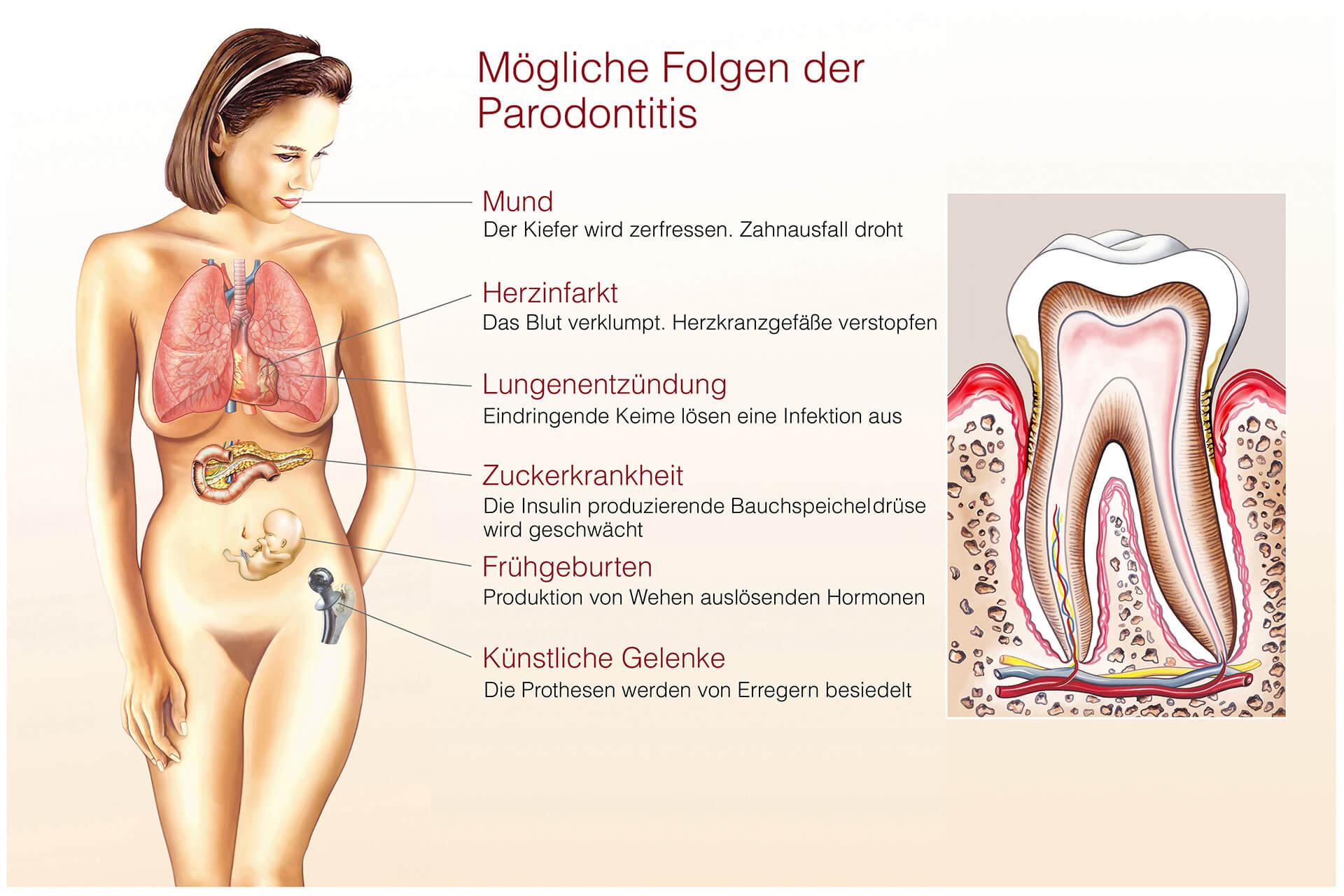 Mögliche Folgen der Parodontitis - die Zahnarztpraxis Jan Vijfvinkel hilft Ihnen