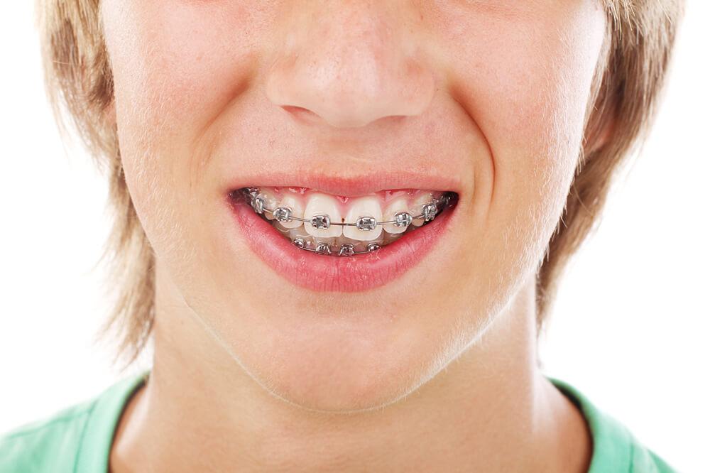 festsitzende Zahnspange - die gibt es in Papenburg beim Zahnarzt